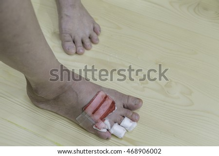 scar on foot of Asian women by dog bite injury on wooden background