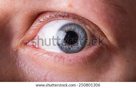 scarry eye in close up - stock photo