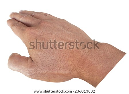 Scars on back of hand