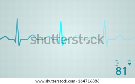 Schematic diagram of normal sinus rhythm for a human heart as seen on ECG.Blue highlights on bright background. - stock photo