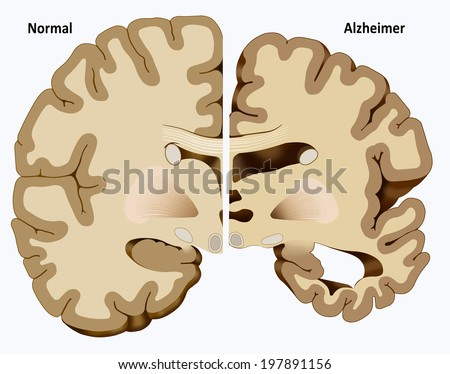 Schematic illustration of the dissection of a healthy brain and one with Alzheimer's disease - stock photo
