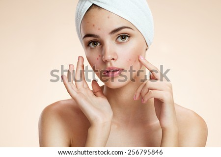 Scowling girl pointing at her acne with a towel on her head. Woman skin care concept / photos of ugly problem skin girl on beige background   - stock photo