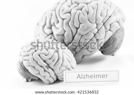 selective focus about human brain model with black and white color - stock photo