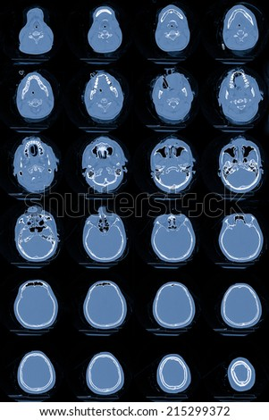 Series of images from a computerized tomography of the brain or CT Scan - stock photo