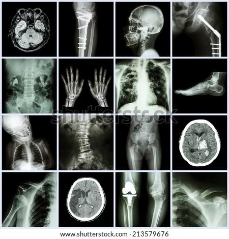 Set of X-ray multiple part of human,Multiple disease,orthopedic,surgery (Stroke,Bone fracture,Orthopedic operation,Kidney stone,Arthritis,Gout,Pulmonary tuberculosis,Heart disease,Scoliosis,etc) - stock photo