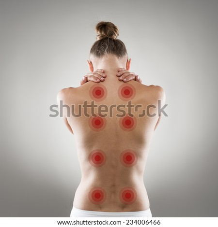 Shiatsu treatment. Healthy back and spine concept. Young Caucasian woman with naked back with red points poising in studio over grey background.  - stock photo
