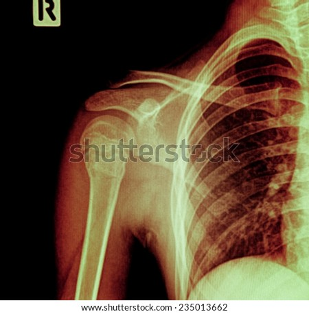 Shoulder joint X-ray photos, the front - stock photo