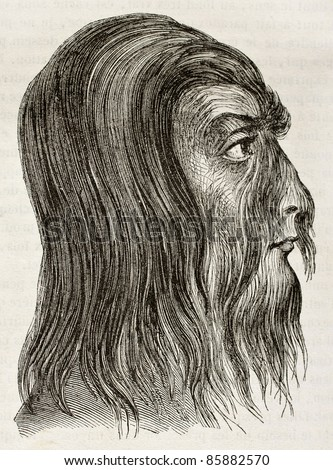 Shwe-Maong  profile (Burmese hairy man). By unidentified author, published on Magasin Pittoresque, Paris, 1842 - stock photo