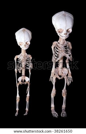 Skeletons of babies - stock photo