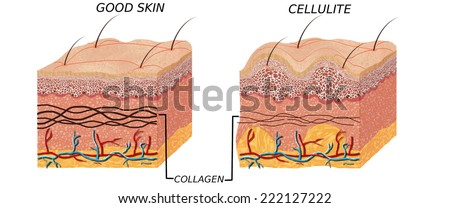 Skin anatomy diagram - comparation good skin and skin with cellulite. Illustration of skin cross section showing cellulite  - stock photo