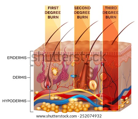 Skin burn classification. First, second and third degree skin burns. Detailed skin anatomy. - stock photo