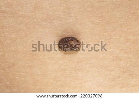 Skin mole, prevention, care - stock photo