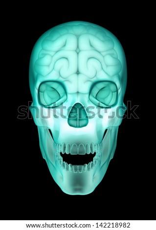 Skull brain x-ray - stock photo