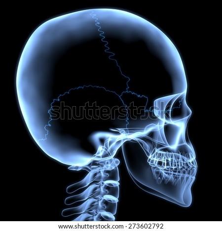 Skull. 3D. X-ray skull side view - stock photo