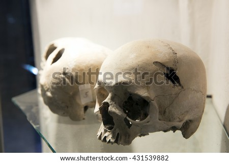 Skull in museum - Human skull injured by the murderer's ax  - stock photo