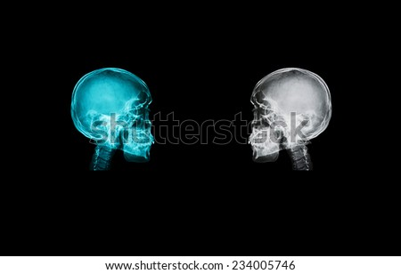skull x-ray image isolated on black backgroud with clipping path  - stock photo
