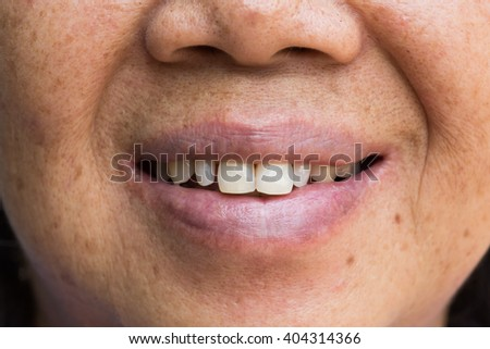 smile close up,old women thailand - stock photo
