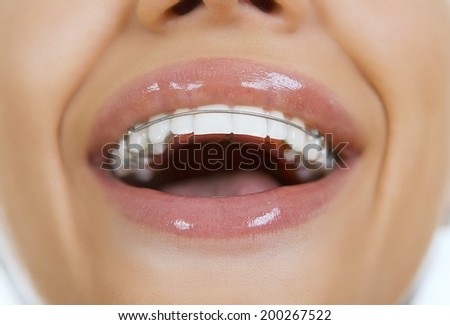 Smiling girl with retainer on teeth, close-up - stock photo