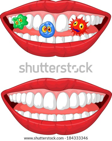 Smiling lip with microbe - stock photo