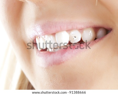 Smiling woman mouth with crystal in teeth.