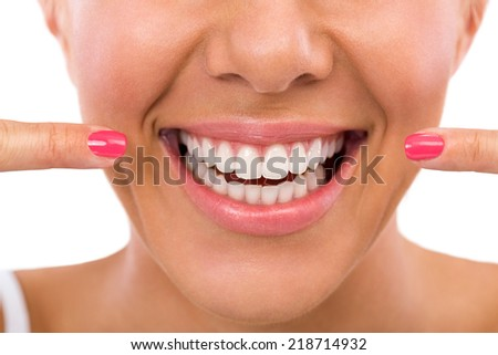 Smiling woman showing her perfect white teeth - stock photo