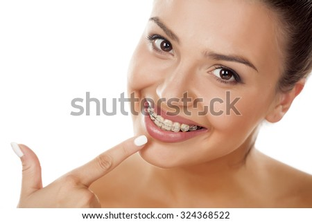 smiling young woman pointing a finger on her braces - stock photo
