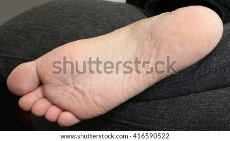 sole of the foot with fungi skin disease - stock photo