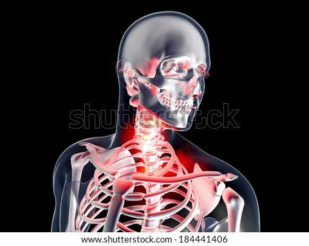 Sore Throat . 3D rendered illustration. Isolated on black. - stock photo