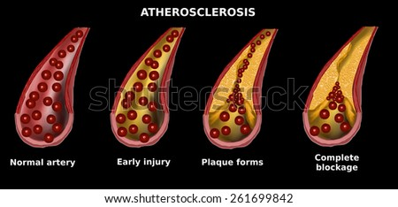 Stages of atherosclerosis. Cholesterol plaque in artery (atherosclerosis) illustration. Process of cholesterol forming plaque in artery. Blood clot, plaque in artery restricting blood flow. - stock photo