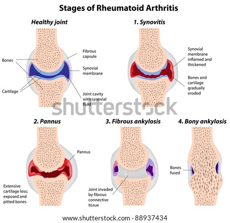 Stages of rheumatoid arthritis - stock photo
