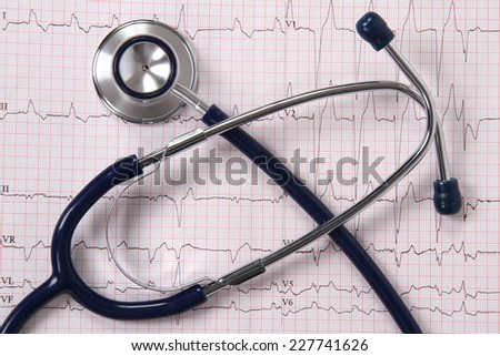 Stethoscope and cardiogram, medical concept. Toned photo  - stock photo