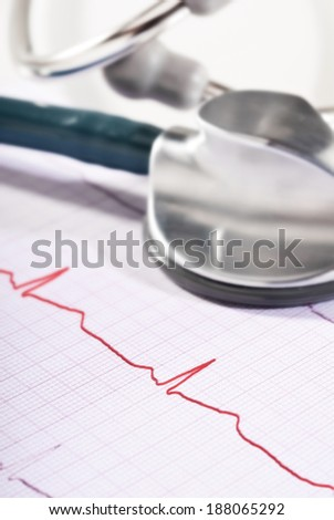 Stethoscope lying on the printout of an ECG.