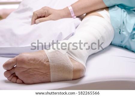 Stitches in a leg, leg wound - stock photo