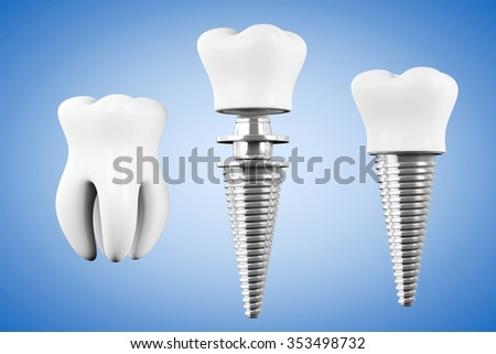 Stomatology concept. Tooth Implant with Tooth on a blue background - stock photo