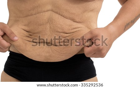 stretch marks of a man after  weight loss - stock photo