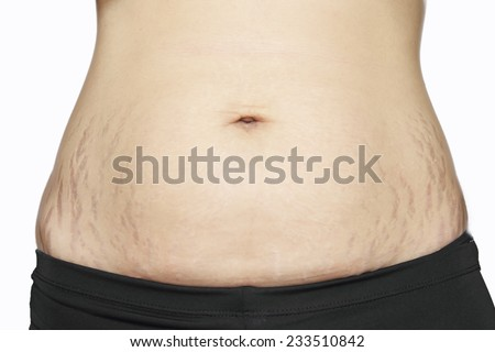stretch marks on Asian woman belly - stock photo