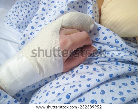 Swollen hand in bandages right after complicated surgery on the ring finger - stock photo