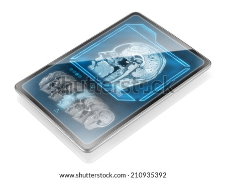 Tablet with MRI scan isolated on white background - stock photo