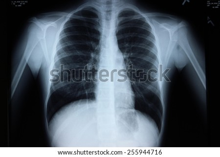 Teenage Girl with Asthma and Bronchitis - stock photo