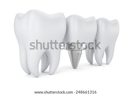 Teeth and dental implant isolated on white background. 3d render - stock photo