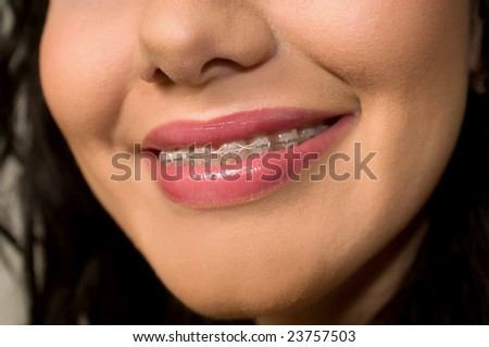 Teeth in brackets close up - stock photo