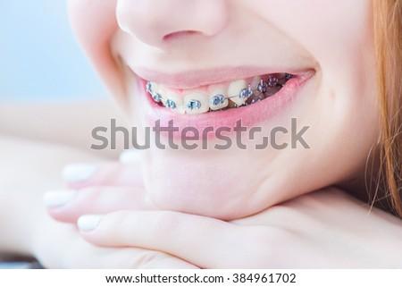 Teeth with braces. - stock photo
