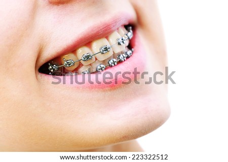 Teeth with braces, beautiful female smile - stock photo