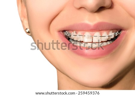 Teeth with Braces, Dental Care concept, front view. Smile with Sapphire braces. The Gap between the Teeth. Orthodontic treatment. - stock photo