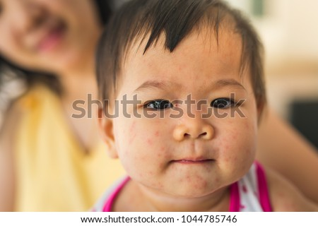 Epstein-barr Virus Stock Images, Royalty-Free Images ...