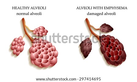 Dangers smoking lungs healthy person smoker stock illustration the dangers of smoking the lungs of a healthy person and smoker alveoli ccuart Images