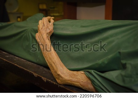 The dead body. Focus on hand decay. - stock photo
