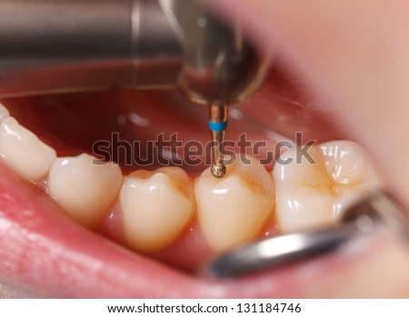 The dentist cleans the tooth with drill - stock photo