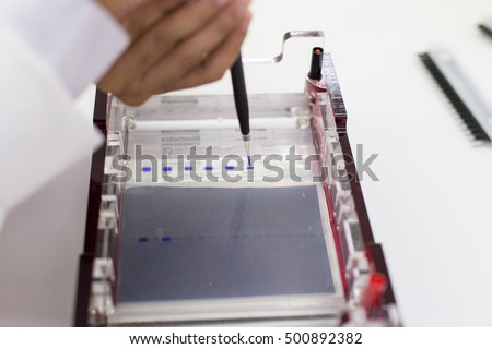 The DNA testing, DNA extraction in Lab