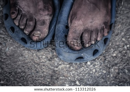 The feet of a old man living on the street. - stock photo